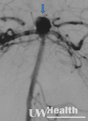UW Health neuroendovascular surgery image of ruptured basilar apex aneurysm