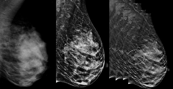 digital tomosynthesis in breast imaging Purpose: to describe and evaluate a method of tomosynthesis breast imaging with a full-field digital mammographic system materials and methods: in this tomosynthesis method, low-radiation-dose images were acquired as the x-ray source was moved in an arc above the stationary breast and digital detector.