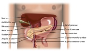 UW Health Liver and Pancreas Program: Whipple surgery illustration