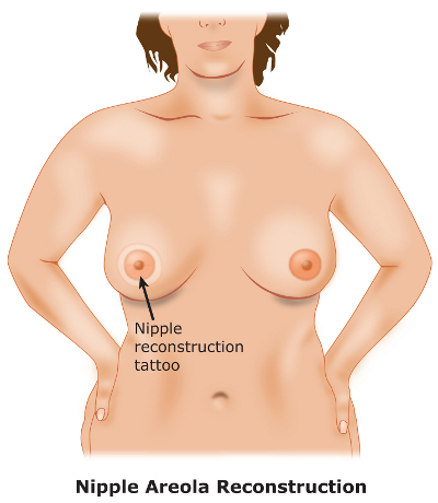 Nipple Areola Reconstruction