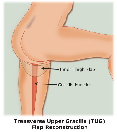 Transverse Upper Gracilis (TUG) Flap Reconstruction