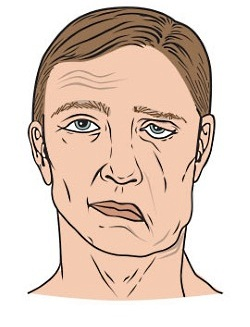 UW Health Facial Nerve Paralysis: Flaccid facial paralysis