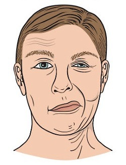 UW Health Facial Paralysis: Synkinesis