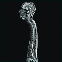 MRI image of brain and spine