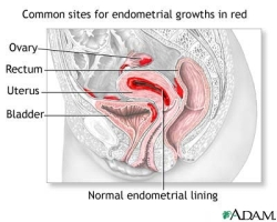 Illustration for common sites of endometrial growths