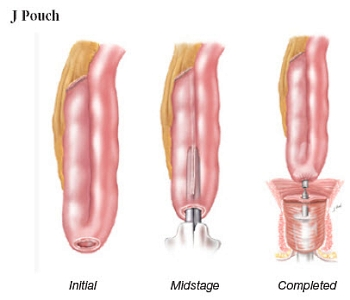 J pouch for ileal pouch reconstruction