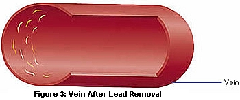 vein after lead removal