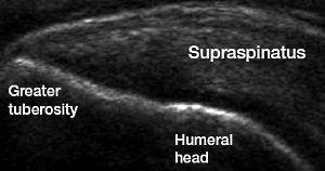 Musculoskeletal ultrasound of the shoulder