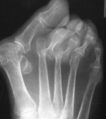 X-ray image of a foot with rheumatoid arthritis