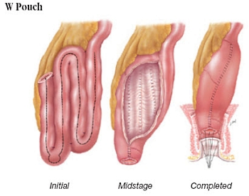 W pouch for ileal pouch reconstruction