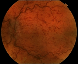 UW Health eye photography: Central retinal vein occlusion