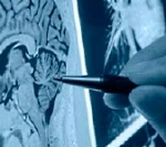 Image of the spinal cord being examined by doctor