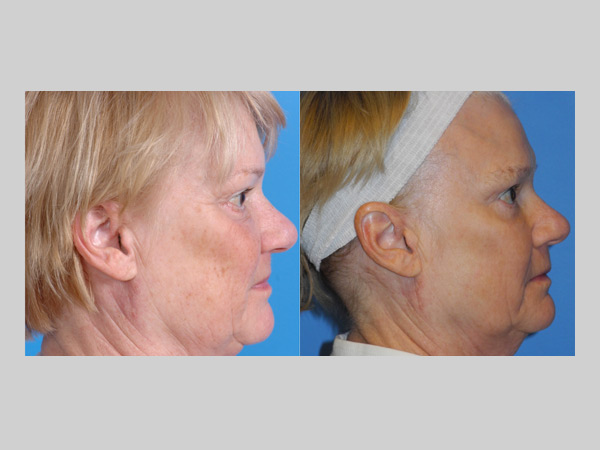 Surgery before and after photo gallery uw health madison wi