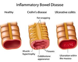 Crohn's disease and ulcerative colitis are two examples of Inflammatory Bowel Disease