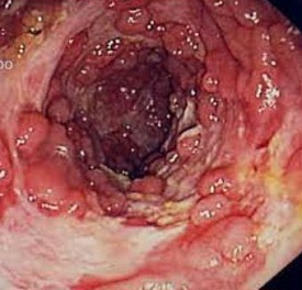Upper endoscopy and colonoscopy demonstrating cobblestoning and deep ulcerations in the sigmoid colon