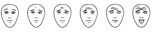 Faces Pain Scale - Revised; American Family Children's Hospital; Madison, Wisconsin