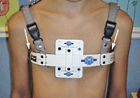 The brace used for patients with pectus carinatum.