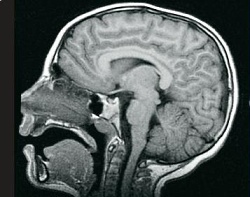 This is an MRI image.