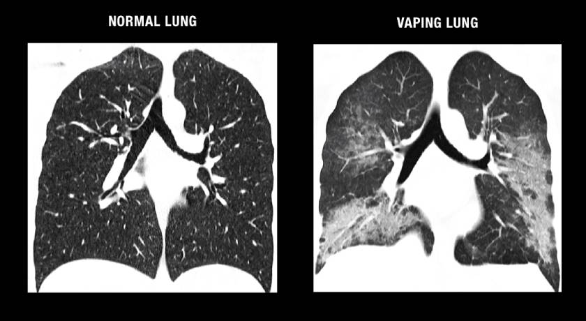 CT scan of normal lungs vs. vaping lungs