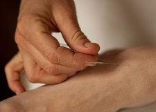 Acupuncture is an example of an Integrative Health practice that can prove beneficial to cancer patients.