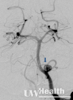 UW Health neuroendovascular surgery image of front view of aneurysm before coiling