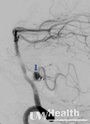 UW Health neuroendovascular surgery image of side view of aneurysm before coiling (arrow)
