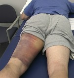 The bruising on the left leg is consistent with a severe hamstring injury.