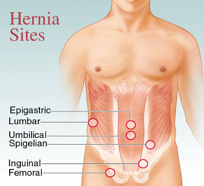 types of hernia surgery in iran