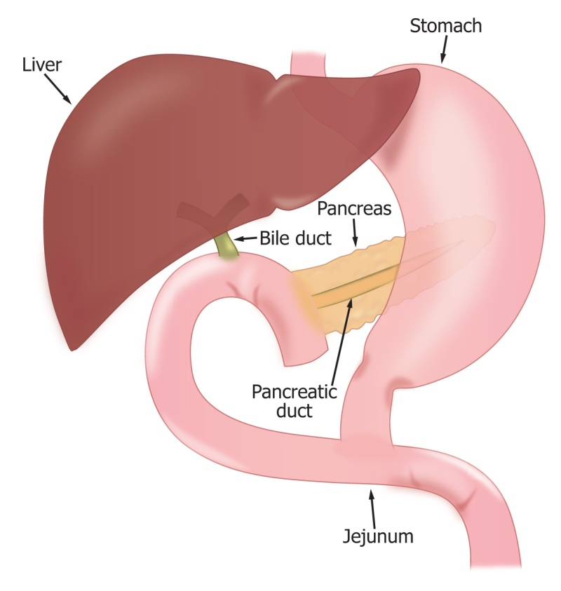 Pancreatic Head Resection Whipple Procedure Liver And Pancreas
