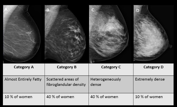 Dense Breast Tissue Examples and Chart