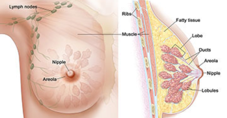 Understanding Breast Cancer