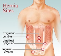 View a larger image of common hernia sites
