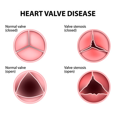 Normal heart valves compared to heart valves with stenosis.