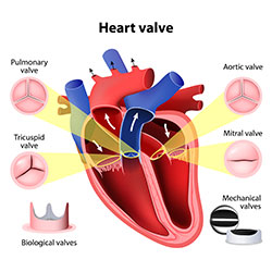 UW Health heart surgeons can address problems with the valves that serve the heart.