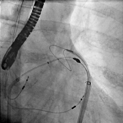X-ray image of the Lariat snare being deployed on the left atrial appendage.  This allows the left atrial appendage to be closed.