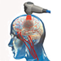Laser therapy for stroke