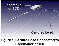 cardiac lead connected to pacemaker or ICD