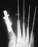 X-ray of foot after reconstruction surgery