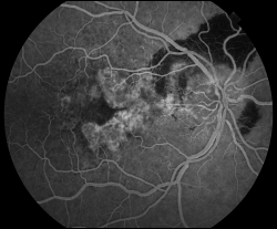 UW Health eye photography: Fluorescein angiogram of the same eye, showing leakage of fluid in the central macula, and blocked fluorescence due to the hemorrhage