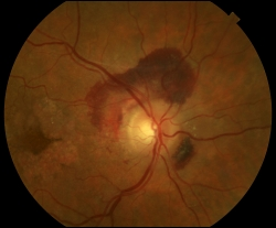 UW Health eye photography: Age-related macular degeneration (AMD), wet form, with sub-retinal hemorrhage