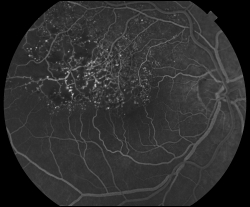 UW Health eye photography: Fluorescein angiogram of the same eye, showing damage caused by the branch retinal vein occlusion