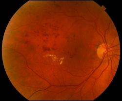 UW Health eye photography: Branch retinal vein occlusion