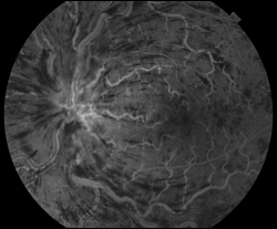 UW Health eye photography: Fluorescein angiogram of the same eye, showing damage caused by the central retinal vein occlusion
