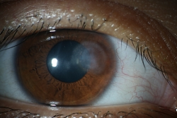 UW Health eye photography: Corneal ulcer, an area of tissue loss caused by infection