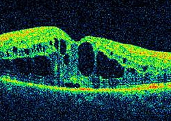 UW Health eye photography: OCT scan showing macular edema (swelling)