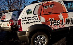 UW Organ and Tissue Donation: OTD cars