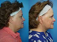 facelift and bilateral upper eyelid blepharoplasty; UW Health Transformations plastic surgery; Madison, Wisconsin
