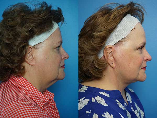 Plastic Surgery Before-and-After Photo Gallery   UW Health   Madison, WI