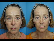 Procedure: Mini face lift; Plastic Surgeon: Ben Marcus, MD