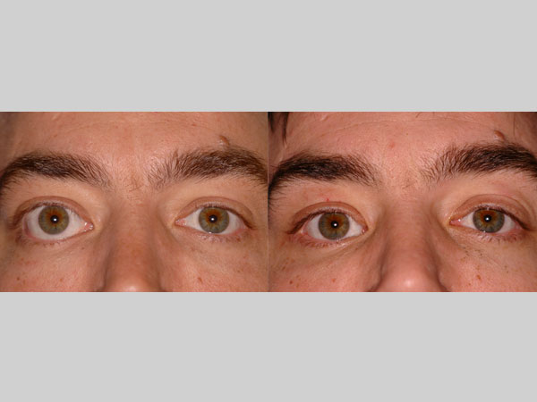 Plastic Surgery Before And After Photo Gallery Uw Health